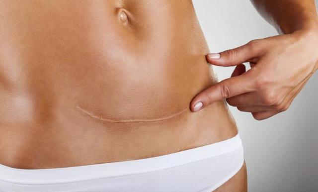 cesárea y parto vaginal