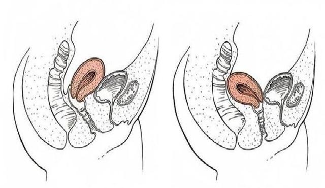 utero en retroversion y fertilidad