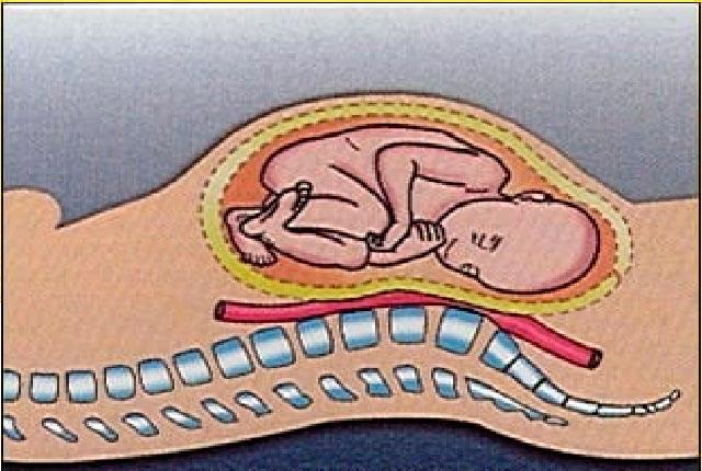 Riesgos de dormir boca arriba en el embarazo