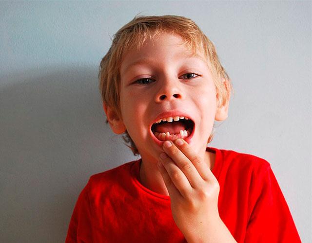 ¿Cuándo se caen los dientes de leche?