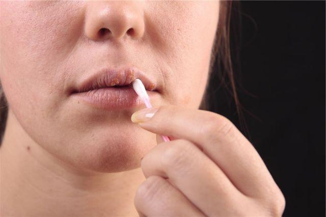 tratamientos para las boqueras tratamiento para el fuego labial tratamiento para el herpes labial