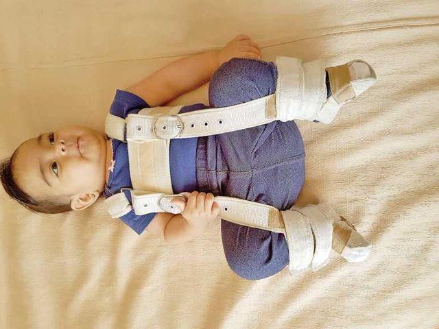Displasia de cadera 2