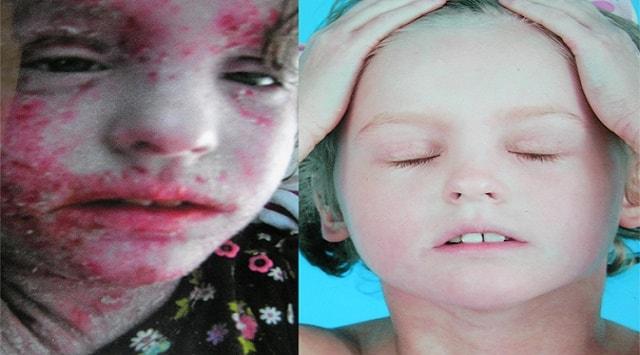 Eczema en la cara del bebé