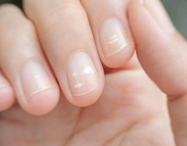 Leuconiquia manchas blancas en las uñas