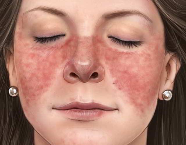 Lupus durante el embarazo