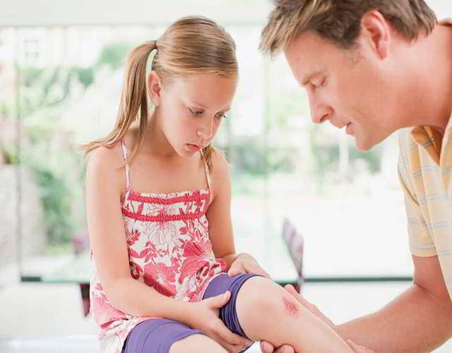 cómo actuar cuando tienen raspones los niños