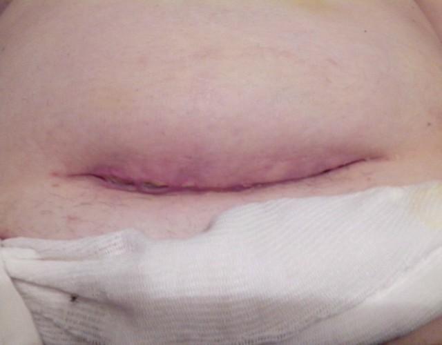 cicatriz de la cesárea