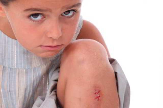 raspones en los niños y cómo actuar