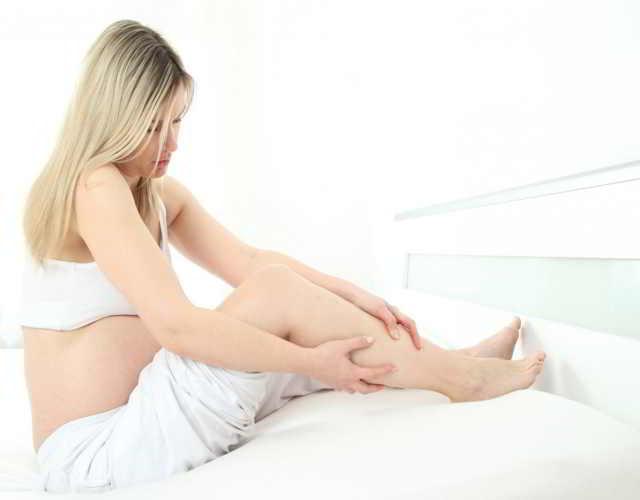 varices en el embarazo