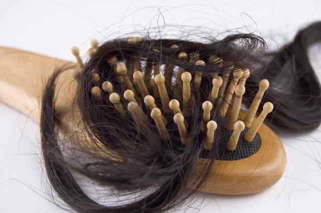 caída del pelo durante el embarazo