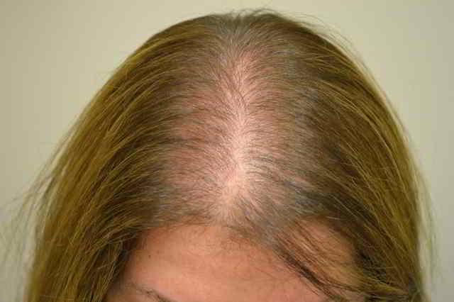 caída de pelo durante el embarazo