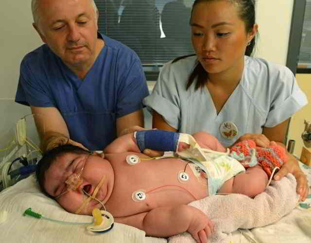 complicaciones en el parto con bebés grandes