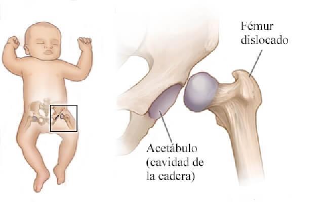 luxación de cadera