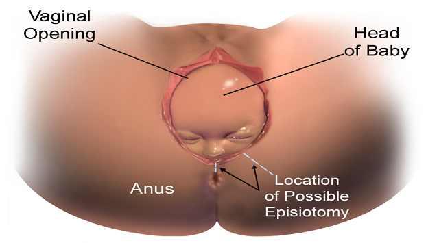 Cambios en la vagina después del parto
