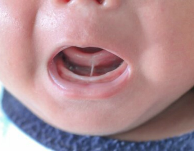 Anquiloglosia en bebés