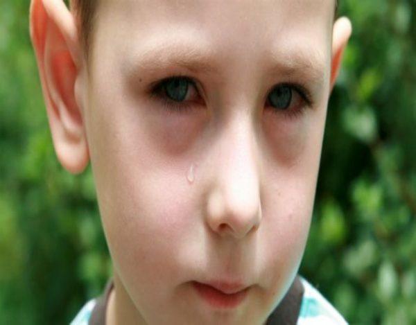gotas de ojos a niños