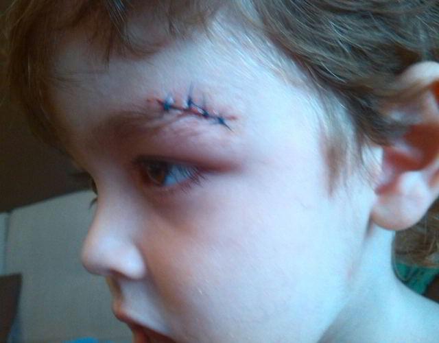 puntos de sutura en niños 3