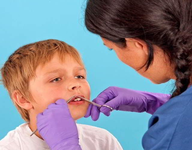 puntos de sutura en niños y cuidados