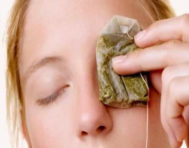 Remedios para orzuelos en niños