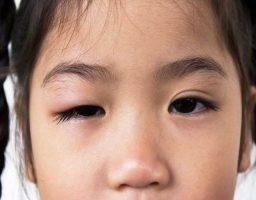 Remedios para un orzuelo en niños