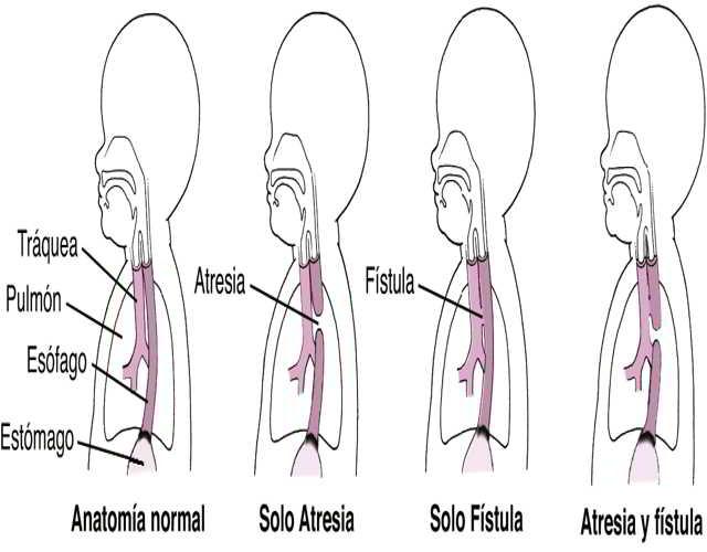 fístula traqueoesofágica