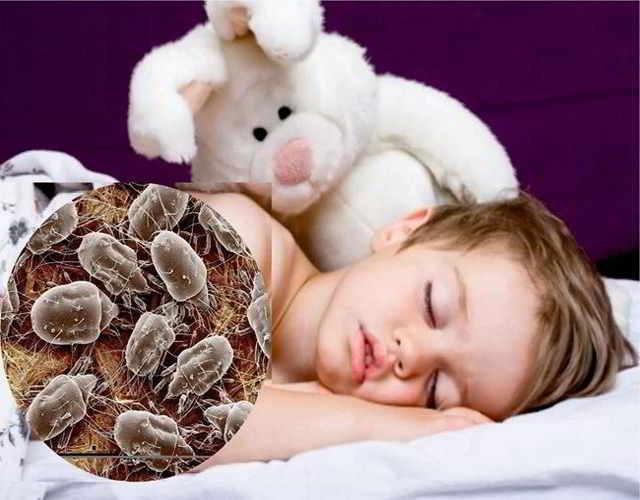 alergia a los ácaros en los niños