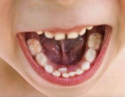 por que a los niños les sale una segunda fila de dientes