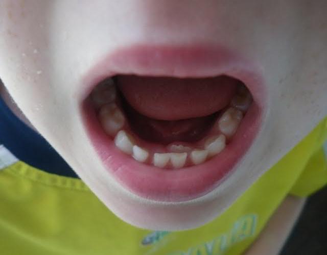 segunda fila de dientes en los niños