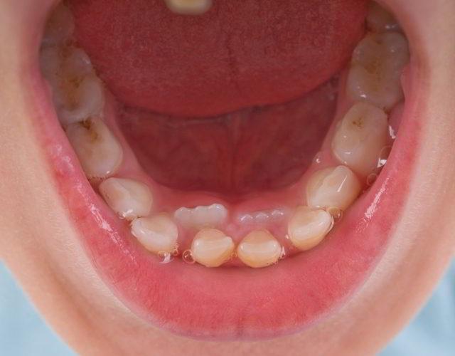 segunda fila de dientes en niños