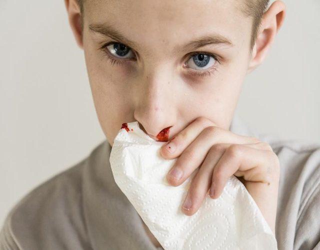 Recomendaciones en caso de sangrado de nariz en niños